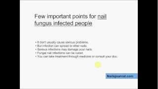 Nail Fungus Causes - Know If Your Nails Are Infected