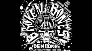 Watch Broken Bones Stand Up video