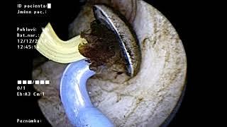 Pénisz megnagyobbodása a kórházban, Hímvessző előbőrének gyulladása