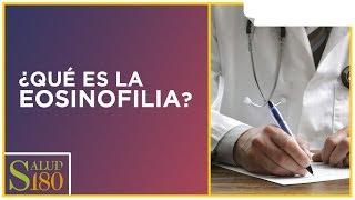 Eosinofilia, ¿Qué es y cómo tratarla? | Salud180