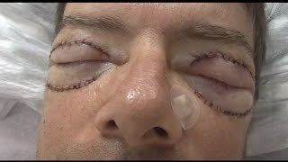 Cosmetic Eyelid Surgery Upper And Lower Blepharoplasty Part 2