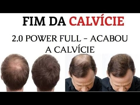 Para o fim da calvície – Queda de Cabelo – Mercado Livre Brasil
