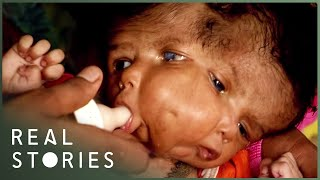 The Girl With Two Faces (Medical Documentary) - Real Stories thumbnail