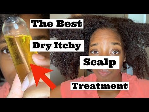 How To| DIY Dry Itchy Scalp Treatment | Eczema Relief| NATURAL HAIR