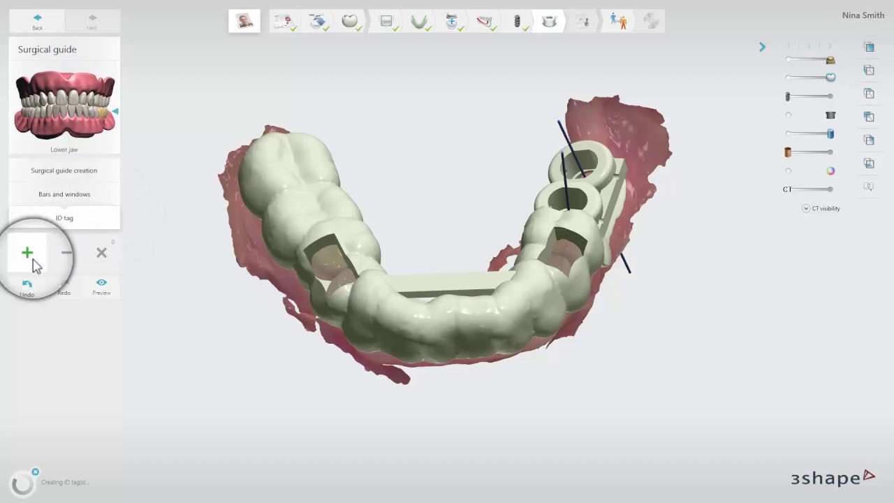 3shape Implant Studio 2017 Surgical Guide Youtube