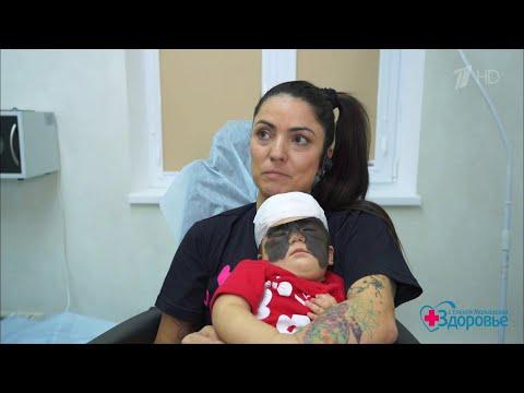 Фотодинамическая терапия против пятен на коже. История американской девочки Луны. Здоровье.