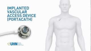 Port-a-Cath (Implanted Vascular Access Device)