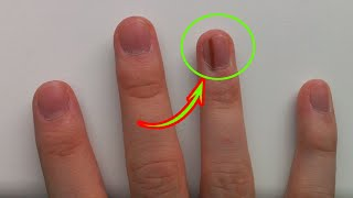 If You See a Black Line On a Person's Fingernail, Run and Call Emergency, You'll Save His Life