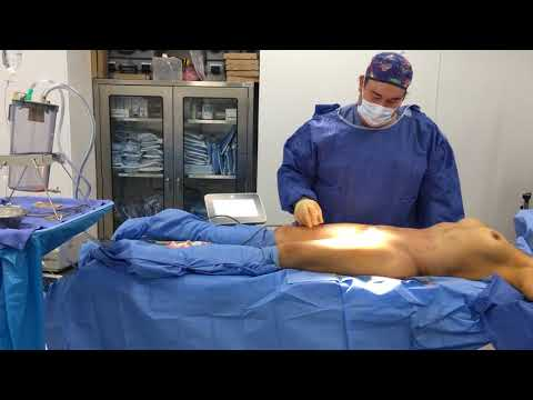BodyTite of Inner Thighs with Dr. Hughes