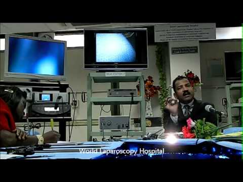 Laparoscope, Laparoscopic Camera, Light Source and Light Cable Demonstrated by Dr. R. K. Mishra