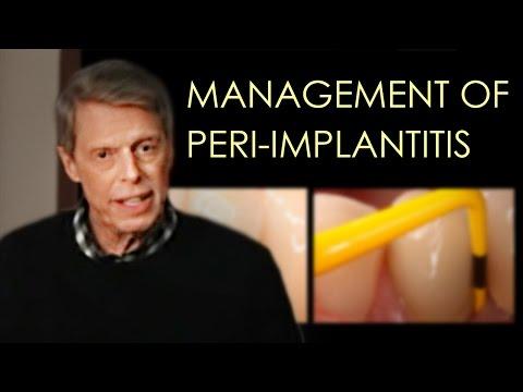Management of Peri-implant Disease (Updated)