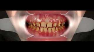 Эстетическая стоматология,(, 2013-06-25T08:15:47.000Z)