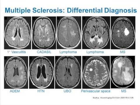 MRI Uses in MS