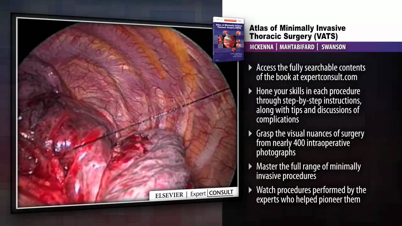 Atlas Of Minimally Invasive Thoracic Surgery Vats Youtube