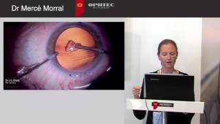 Astigmatism Management in Cataract Surgery with a new Aspheric Toric IOL by: Dr Mercé Morral