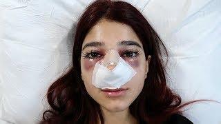شو صار بعد عملية أنفي.