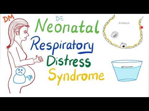 Neonatal Respiratory Distress Syndrome (NRDS)