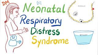 Transient or Temporary Tachypnea of the newborn (TTN) - Dr. V Prakash of Cloudnine Hospitals.