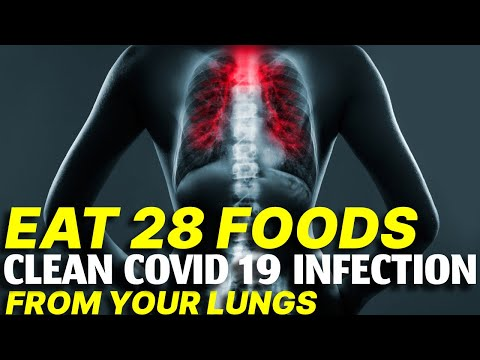 COVID 19 | Best Food Rich In Vitamin C, Vitamin D and Zinc, Should you take Vitamin D and Vitamin C?