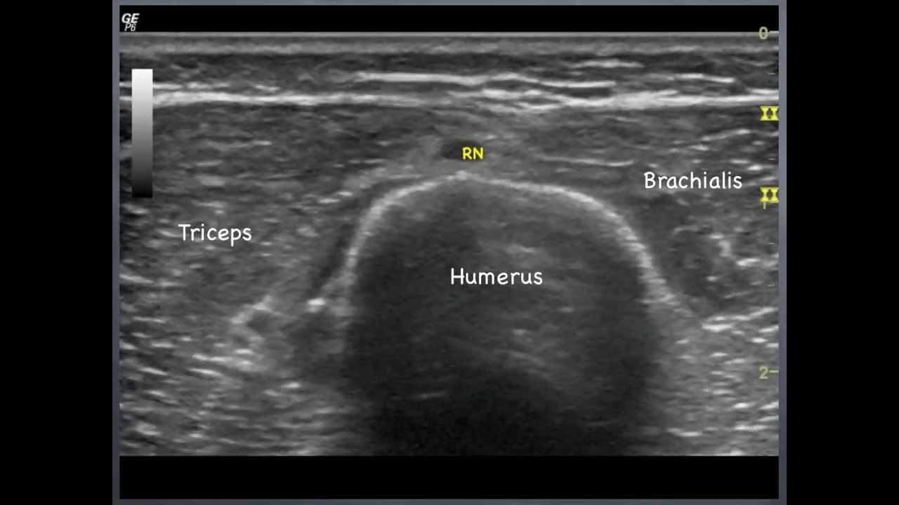 radial nerve humerus to elbow sonoanatomy qmh aed