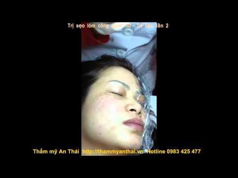 Video thực tế khách hàng sử dụng Vieskin Collagen để trị sẹo lõm