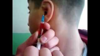 борец : сломанные уши