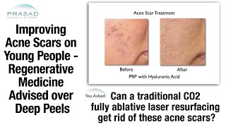Acne Scar Treatment - Improving Skin Rather than Removing it