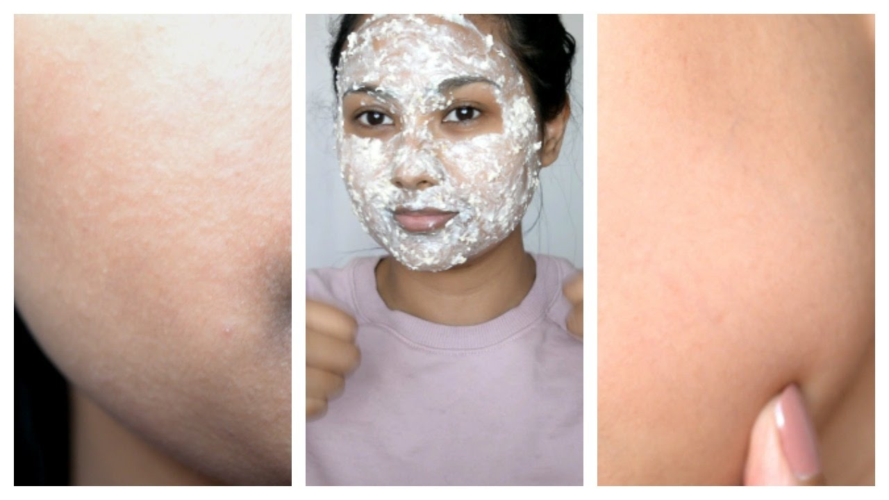 how to stop shaving rash on face