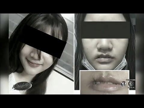 สาววัย 22 ทำศัลยกรรมปากกระจับ พลาดปากแหว่งเบี้ยวเสียโฉม แพทย์ปัดรับผิดชอบ