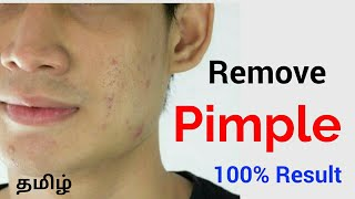 How to Naturally Remove Pimples and Acne