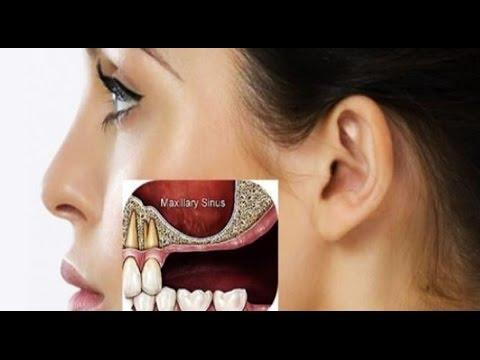 Наращивание кости челюсти
