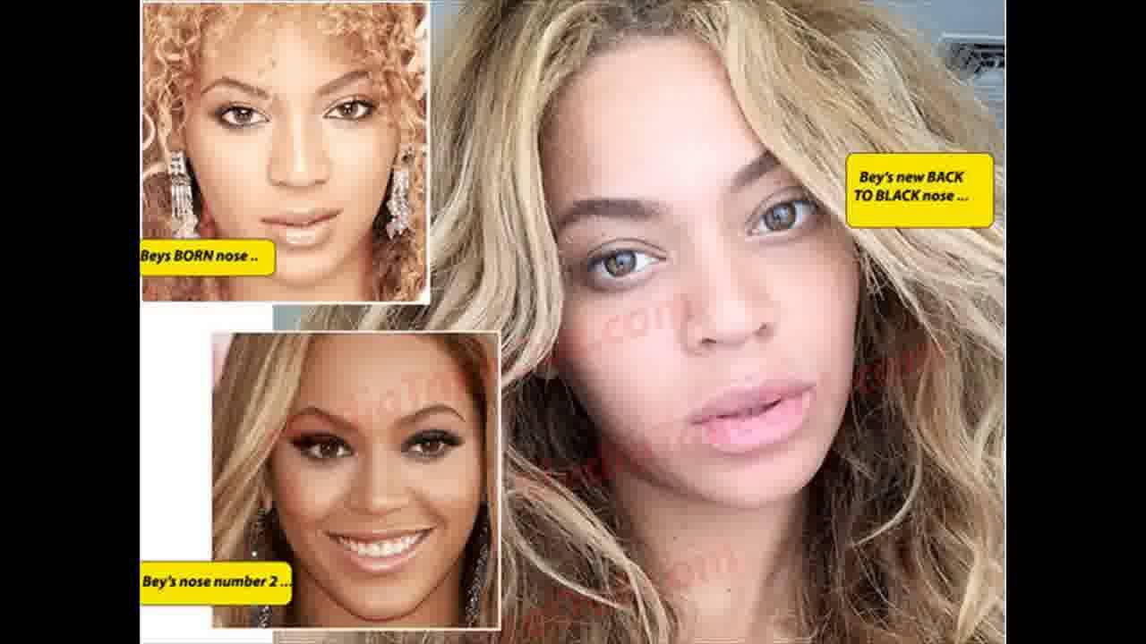 Beyonce Plastic Surgery True Or False Youtube