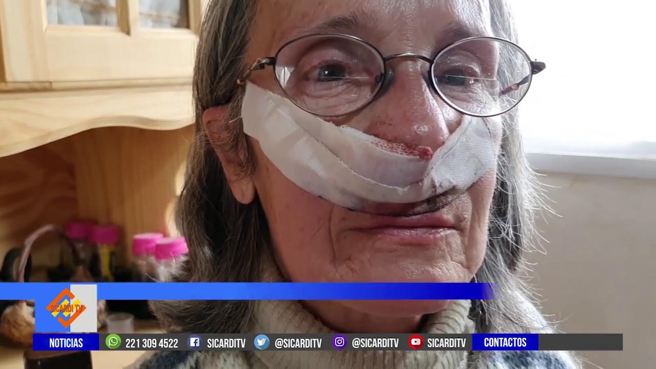 Ciclistas atropellaron a una mujer y se dieron a la fuga