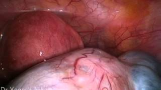 Patient Education Videos - Ovarian Endometrioma