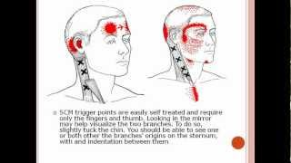 Head, Eye and More Pain from Sternocleidomastoid Muscle Trigger Points: Referred Pain Patterns