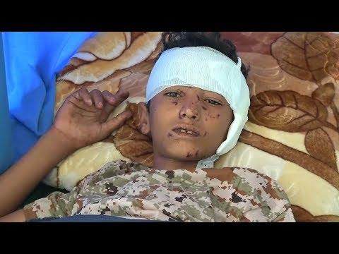 Yemeni Journalist: I Was Afraid US-Saudi Coalition Would Bomb My Wedding Party too