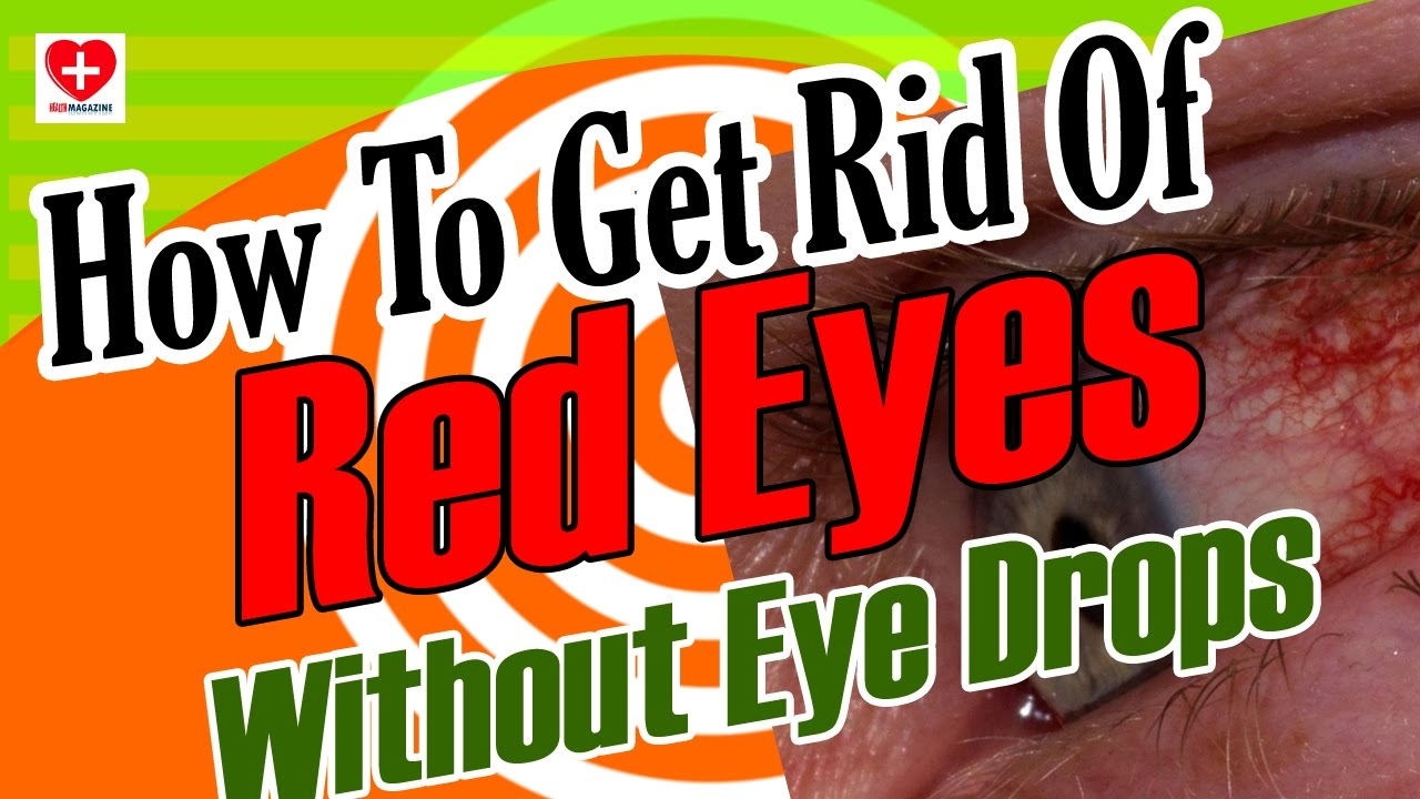 how to stop red eyes without eye drops