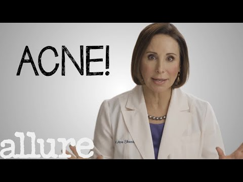 What Is Acne And How Can Get Rid Of It Forever