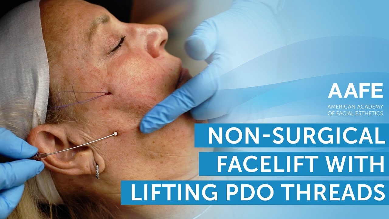 Non-Surgical Facelift with Lifting PDO Threads! | AAFE