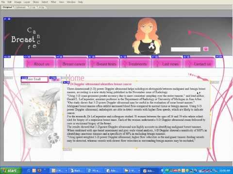 Slicing_BreastCancer1.wmv