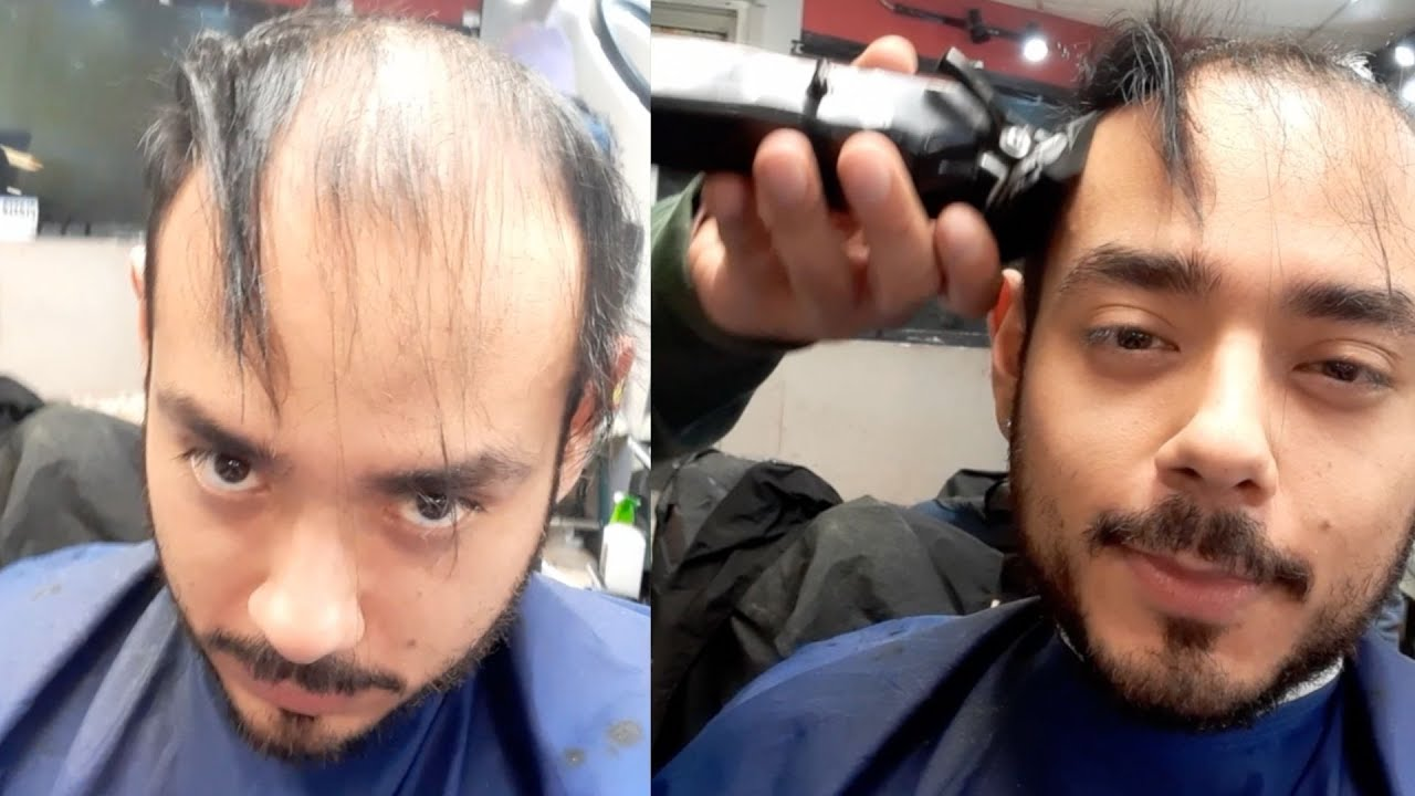 BALDING 20's Man Shaves Off 6 Year Hair Growth That Covered Bald Spot