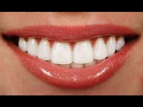 ابتسامة هوليود - تركيبات اللافا - زراعة الاسنان - عدسات اللومينير- الفينير - تقويم الاسنان الشفاف