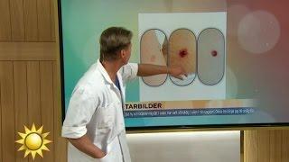 Doktorn bedömer tittarnas leverfläckar - Nyhetsmorgon (TV4)