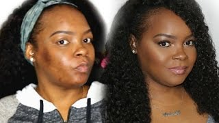 GRWM: HOW I COVER HYPER-PIGMENTATION & ACNE SCARS| SPRING/SUMMER BRONZE GLOW