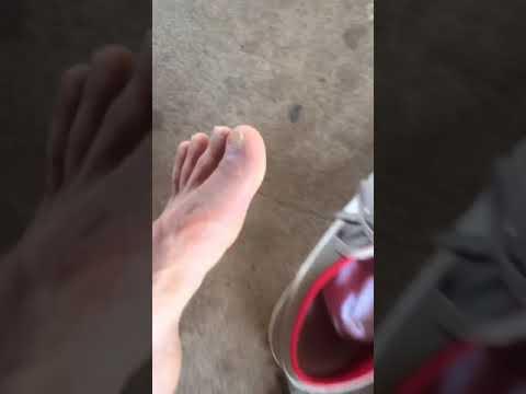 Giardini feet brazi