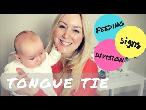 Newborn Tongue Tie & Breastfeeding | Signs, Feeding & Treatment