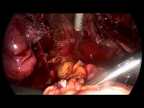 The use & application of herbal implants per rectum during colonic treatment (Abigail Francis) from YouTube · Duration:  42 minutes 23 seconds