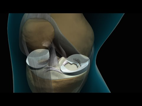 Knee Arthroscopy (Meniscectomy)