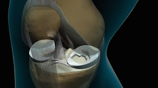 Knee Arthroscopy (Meniscectomy)