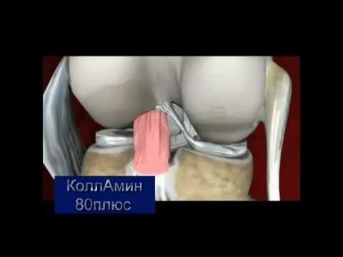 лечение артроза суставов народными средствами в домашних условиях